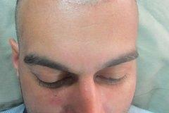 תמונה לפני ההשתלת שיער