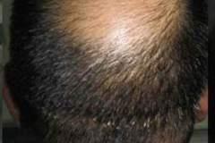 לפני השתלת שיער בכתר