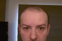 מטופל מאירלנד לפני השתלת שיער