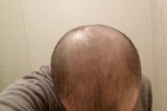 מטופל מאירלנד לפני השתלת שיער מלמעלה