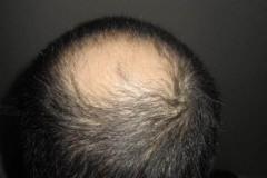 כתר לפני השתלת שיער מטופל אמריקאי