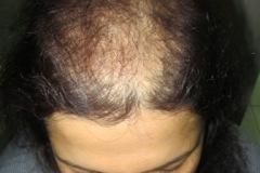 אשה מלפנים לפני השתלת שיער