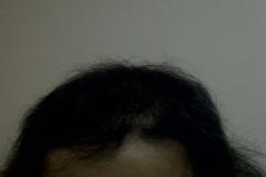 אשה לאחר השתלת שיער
