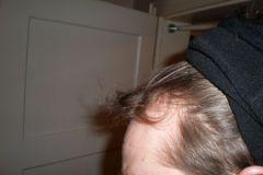 מטופל גרמני מהצד לפני השתלת שיער