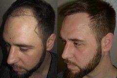 מטופל לפני ואחרי השתלת שיער