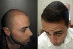 תמונות לפני ואחרי השתלת שיער מטופל מדנמרק