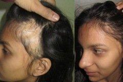 השתלת שיער לאשה לאחר שנכוותה