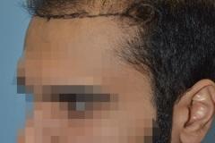 תיקון השתל שיער