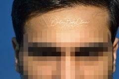 תיקון לאחר השתלת שיער כושלת