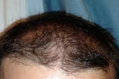 השתלת שיער, מטופל ישראלי לפני מלפנים