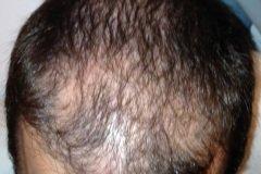 השתלת שיער, מטופל ישראלי לפני מלמעלה