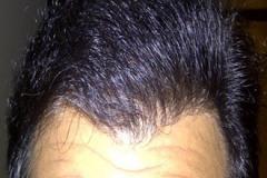תיקון השתלת שיער fut