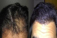 תיקון ניתוח השתלת שיער fut