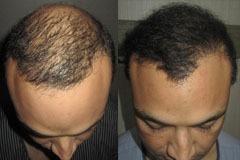 תיקון ניתוח השתלת שיער דליל