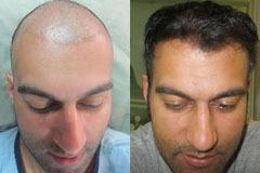 תיקון ניתוח השתלת שיער