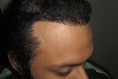 השתלת שיער למטופל אחרי Traction Alopecia