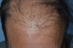 השתלת שיער פלאגים