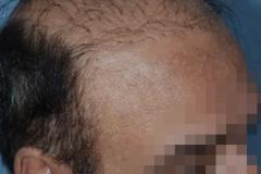 מראה פלאגים השתלת שיער