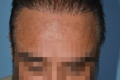 תיקון השתלת שיער עם שיער גוף