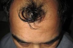 מטופל לפני השתלת שיער בחלק הקדמי והאמצעי