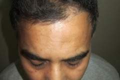 אחרי השתלת שיער הכוללת 3067 שתלים 5 חודשים אחרי