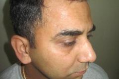 5 חודשים אחרי השתלת שיער